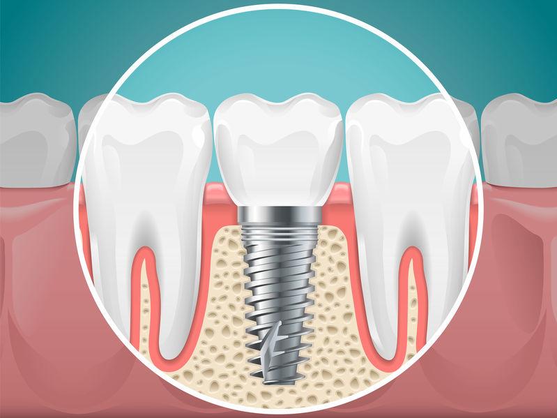 Ken Caryl dentist