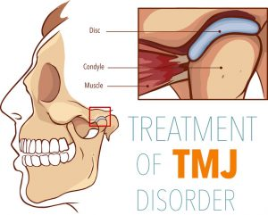 Oral Surgeon Treat TMJ